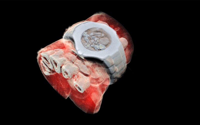 Kolorowy rentgen w 3D